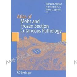 Atlas of Mohs and Frozen Section Cutaneous Pathology by Michael B. Morgan, 9780387847993.