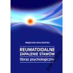 REUMATYZM Zapalenie Stawow Medycyna Psychosomatycz