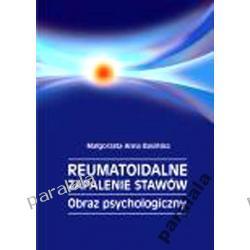 REUMATYZM Zapalenie Stawow Medycyna Psychosomatyczna